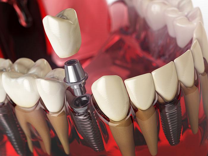 Is a dental implant worth it