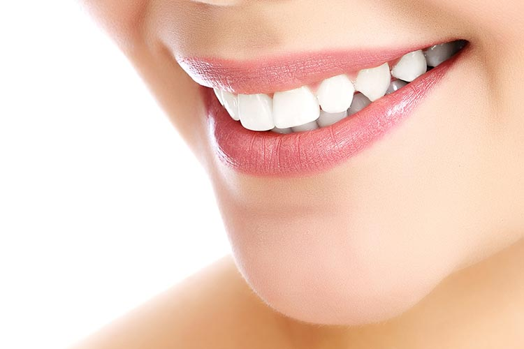 featured image for Are dental veneers worth it