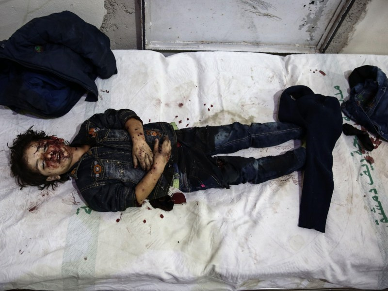 The body of a Syrian girl lies on a bed at a makeshift hospital following reported shelling on a kindergarten in the rebel-held area of Harasta, on the northeastern outskirts of the capital Damascus, on November 6, 2016. At least four children were killed and 19 people injured in the government strike in Harasta, according to the Syrian Observatory for Human Rights. Photo: Sameer Al-Doumy / AFP