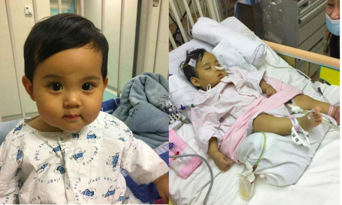 Yu Yan before (left) and after the operation. Photo: Facebook, yuyanrecovery