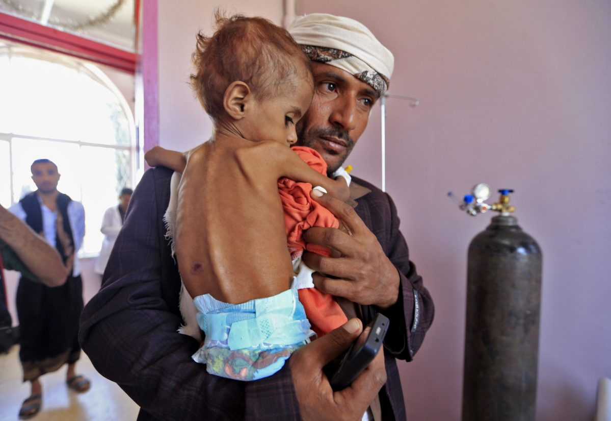 A Yemeni man carries his child who is suffering from malnutrition into a treatment center at a hospital in the capital Sanaa on October 6, 2018. Photo: Mohammed Huwais / AFP