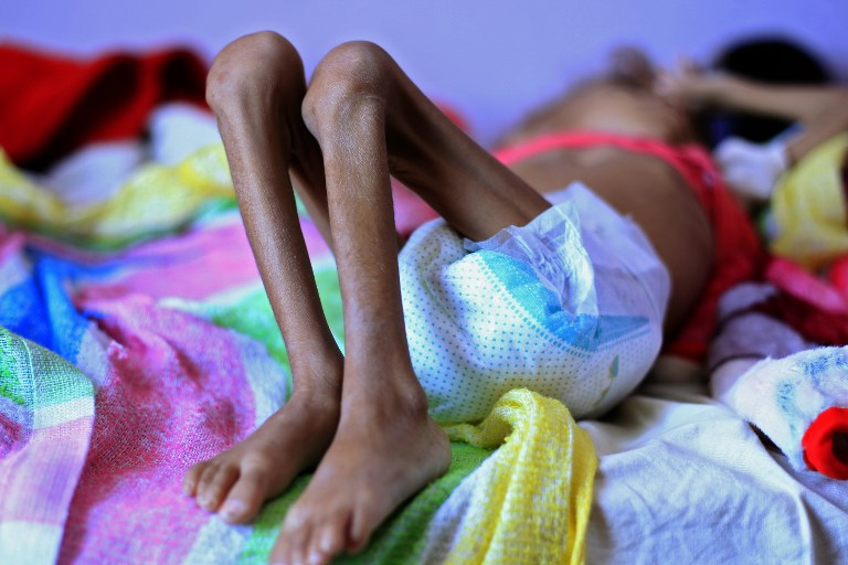 A Yemeni child suffering from malnutrition lies on a bed at a treatment centre in a hospital in the capital Sanaa on October 6, 2018. Photo: AFP / Mohammed Huwais