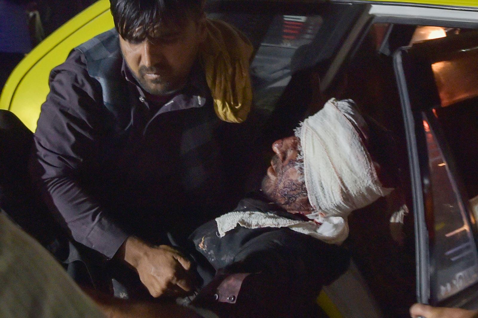 26 年 2021 月 XNUMX 日,喀布尔机场外发生两次爆炸,造成至少 XNUMX 人死亡、XNUMX 人受伤,医务人员和医院工作人员将一名受伤男子抬下车接受治疗。照片:法新社 / Wakil Kohsar