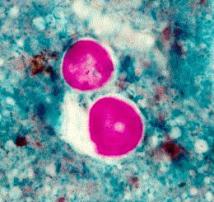 Cyclospora