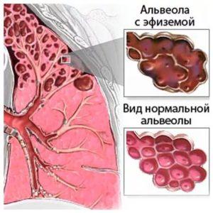 Сколько живут с эмфиземой легких