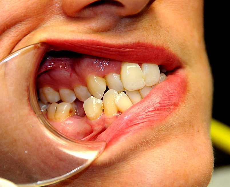 what is a rapid palatal expander ask an orthodontistcom