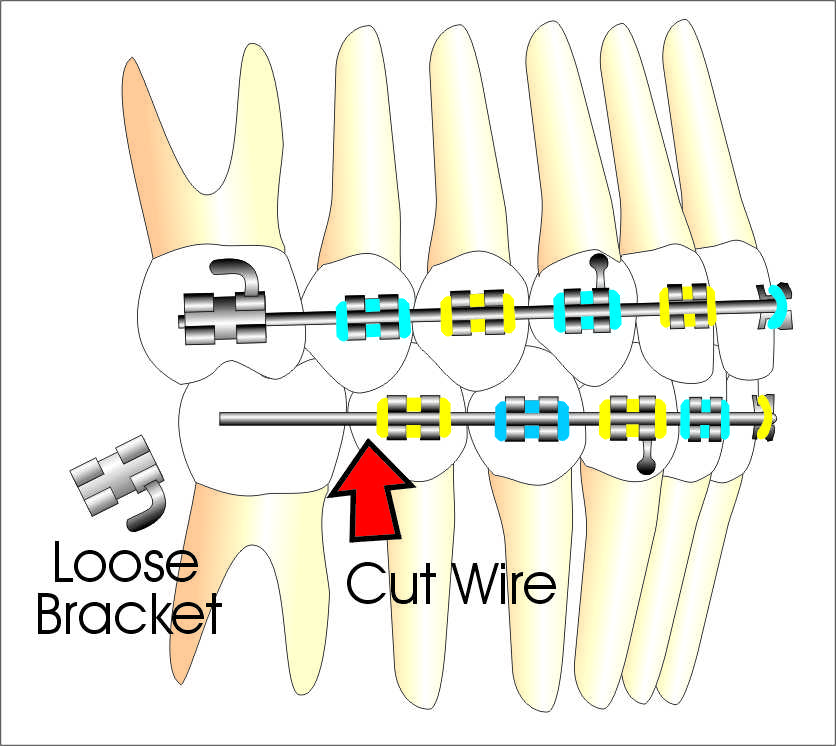 how to fix loose braces wire