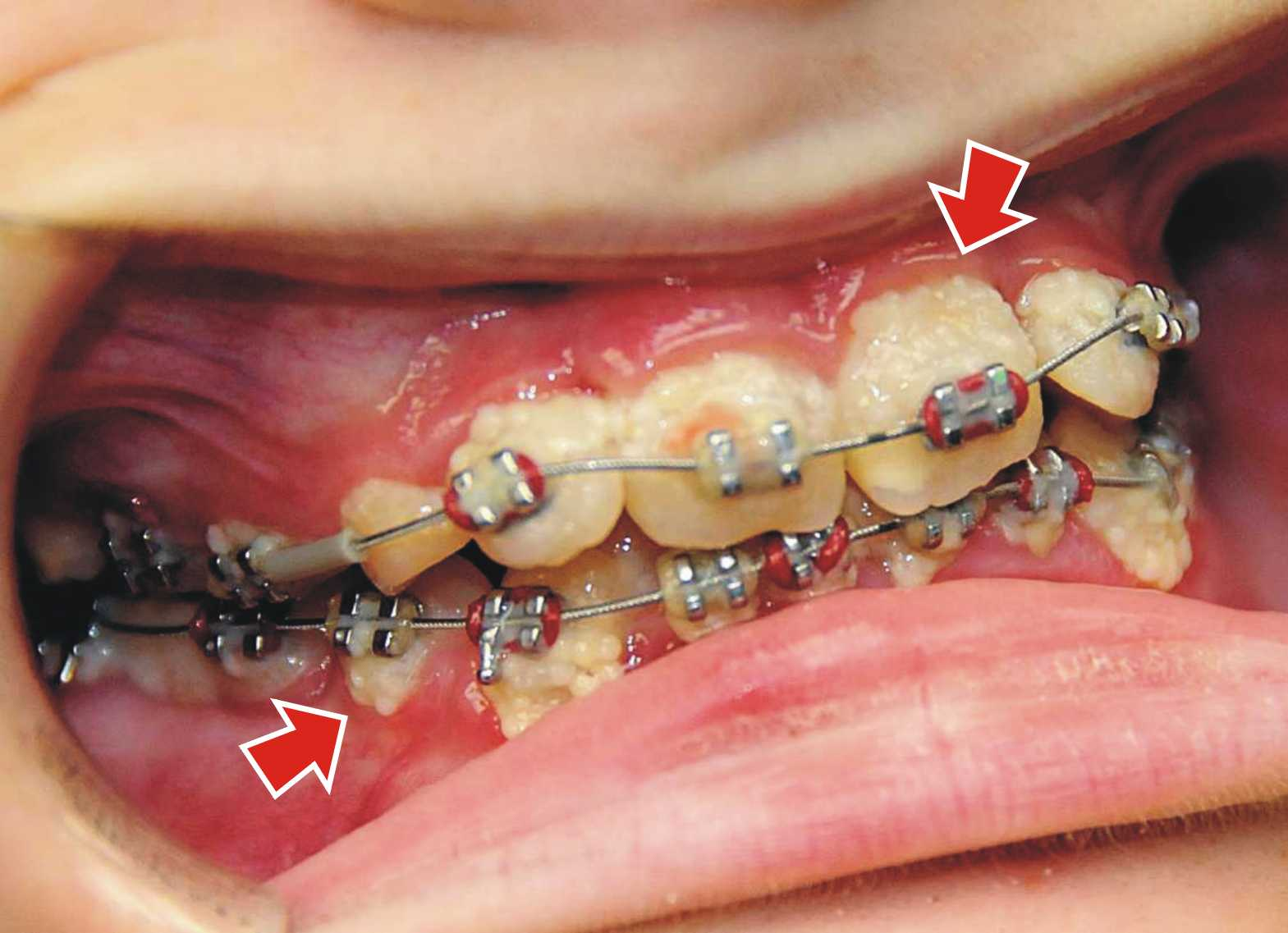 How do you treat white spots after braces ask an orthodontist heavy plaque on patient with braces solutioingenieria Image collections