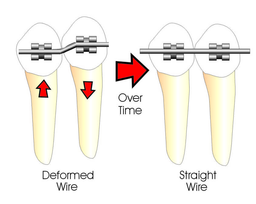 How Do Braces Work? | Ask an Orthodontist.com