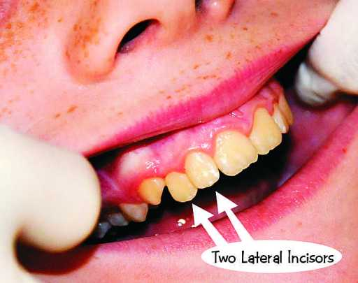 Supernumerary Permanent Lateral Incisor