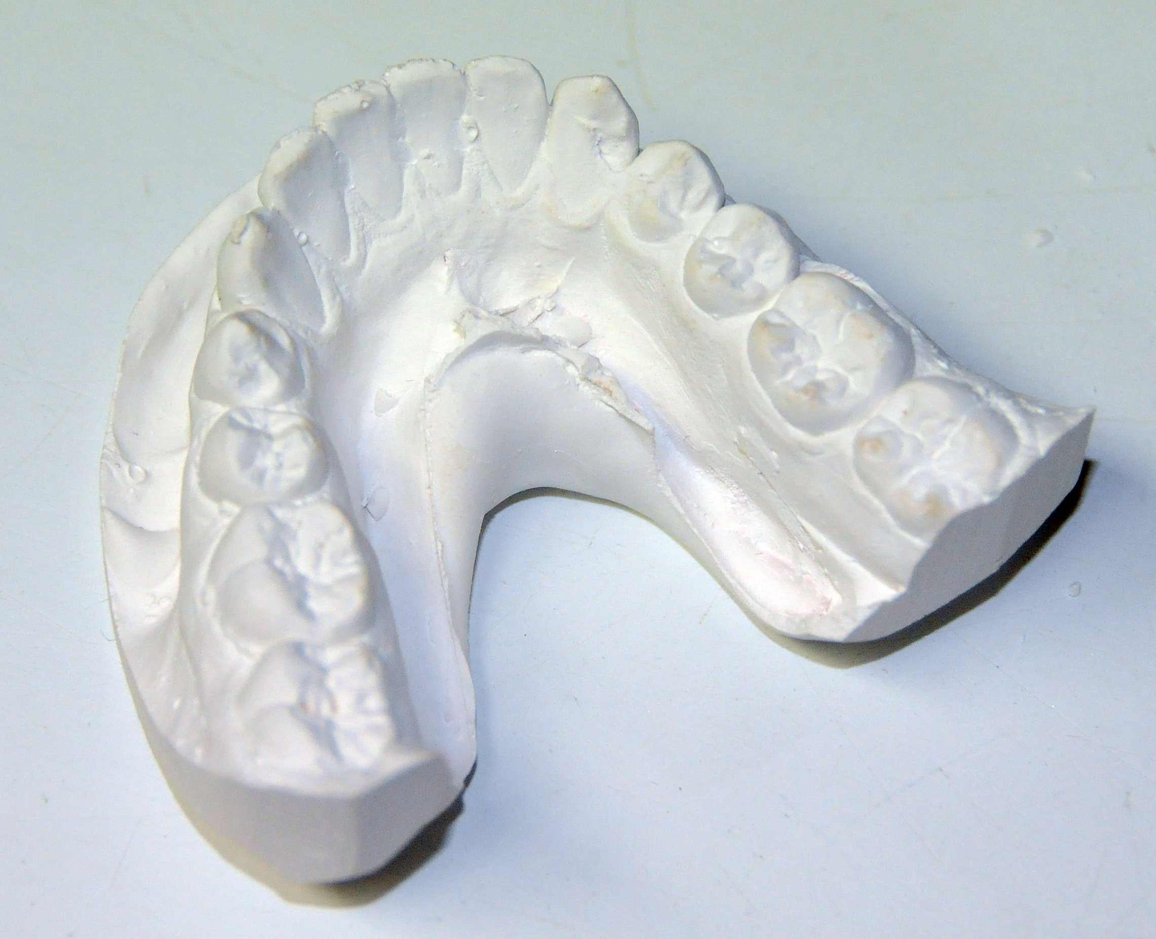 How are Orthodontic Hawley Retainers Made? | Ask an Orthodontist.com
