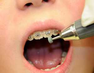 Removing Tooth Mamelons with a Green Stone