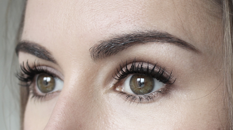 Brow Lift in Singapore