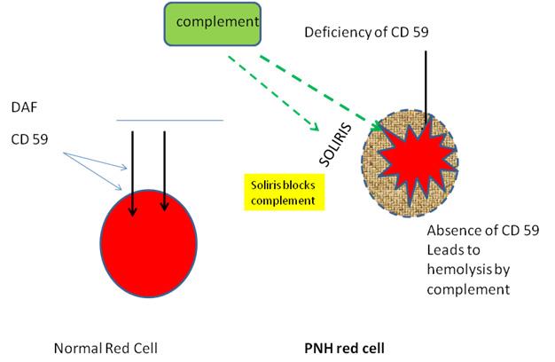 Paroxysmal Nocturnal Hemoglobinuria | Ask Hematologist ...
