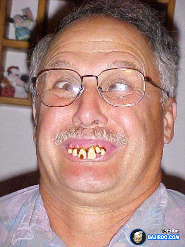 No Teeth Pictures Funny : teeth, pictures, funny, Funny, Teeth, Pictures
