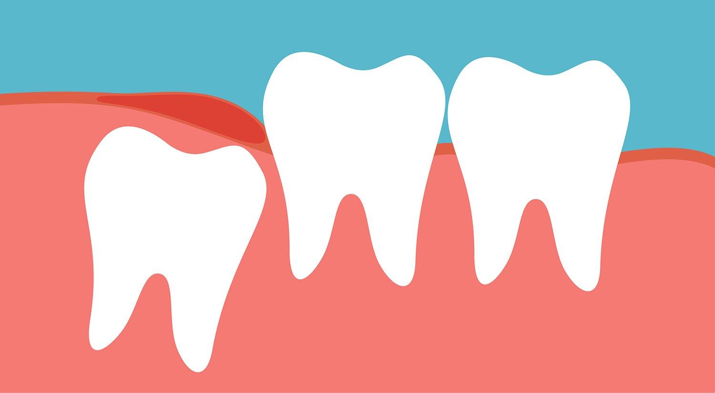 wisdom teeth coming in
