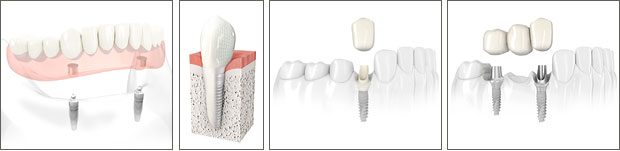 Dental Implants Jackson Mississippi