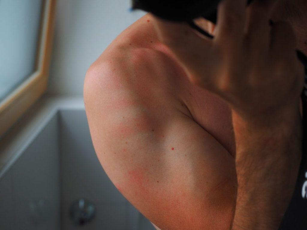 Heridas por quemaduras solares, no necesitan primeros auxilios