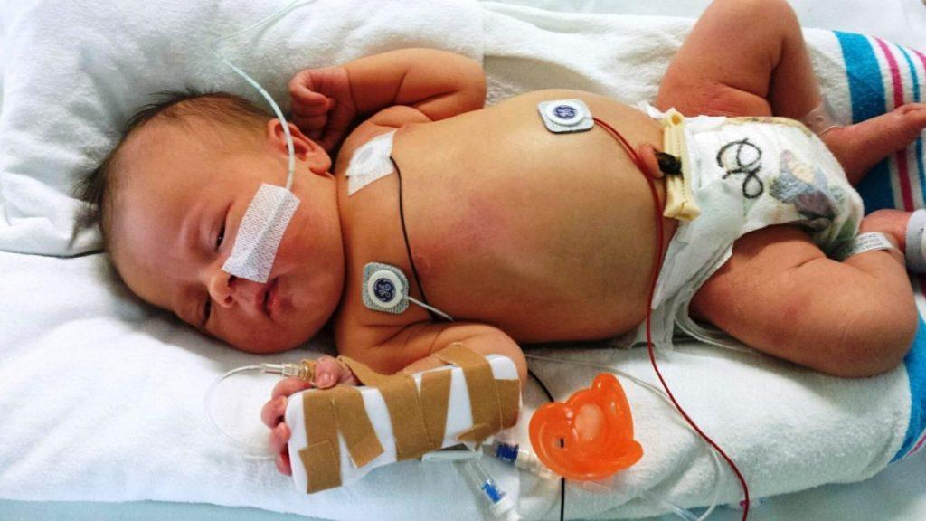Bebé recien nacido conectado a máquinas, enfermo, usuario de banco de leche materna