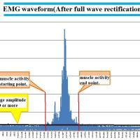 https://i0.wp.com/asploro.com/wp-content/uploads/2019/07/EMG-Wave-Form.jpg?resize=200%2C200&ssl=1