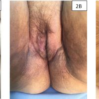 https://i0.wp.com/asploro.com/wp-content/uploads/2019/10/Fig-2_Control-after-vulvar-tumor-excision.-Control-was-performed-7-2A-30-2B-and-60-3C-days-after-tumor-excision-when-a-small-serous-drainage-hole-was-identified..jpg?resize=200%2C200&ssl=1