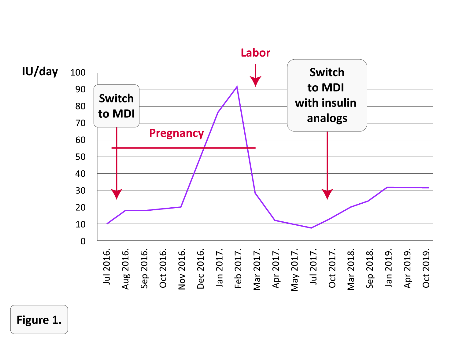 Healthy Pregnancy and Birth during Unusually Long-Lasting Remission of Type-1 Diabetes: Case Report
