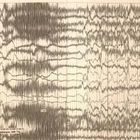 https://i0.wp.com/asploro.com/wp-content/uploads/2019/12/Fig-1_Electroencephalography-EEG-demonstrating-migrating-partial-seizures.jpg?resize=200%2C200&ssl=1