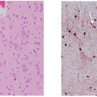 https://i0.wp.com/asploro.com/wp-content/uploads/2019/12/Fig-5_Histological-evaluation-from-autopsy.jpg?resize=200%2C200&ssl=1