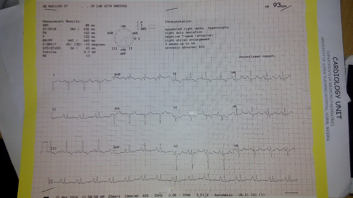 Adult Nigerian with Untreated Pentalogy of Fallot: A Case Report
