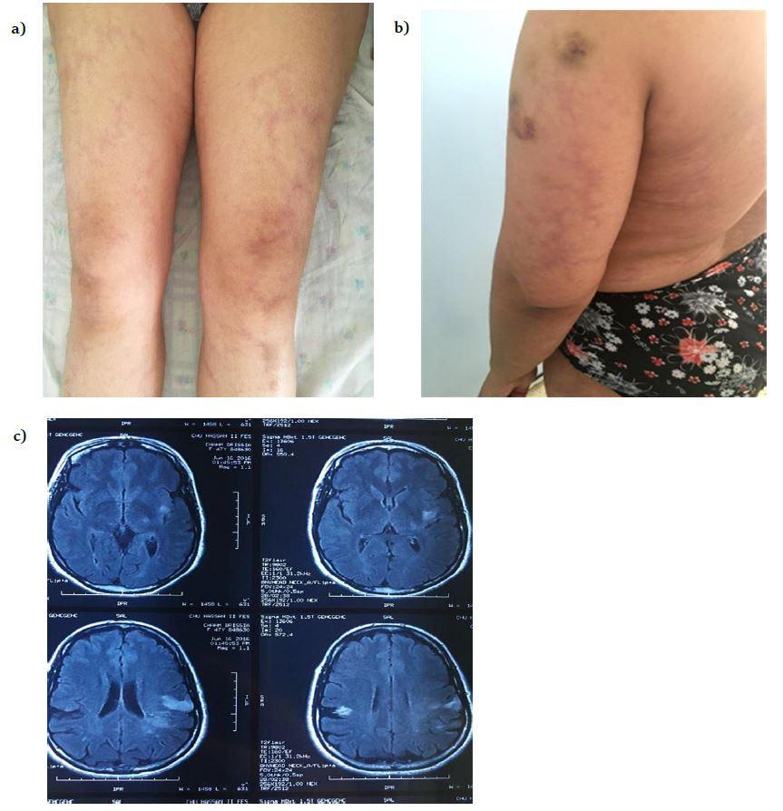 Sneddon's Syndrome: clinical case