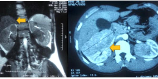 https://i0.wp.com/asploro.com/wp-content/uploads/2020/04/Fig-2_Renal-tumor-10-cm-in-size.jpg?resize=600%2C300&ssl=1
