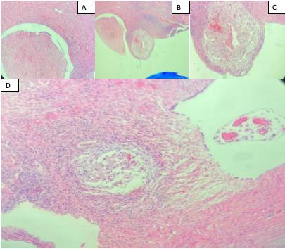 Incidental Discovery of Ovary Cystadenofibroma during Cesarean Section: A Case Report