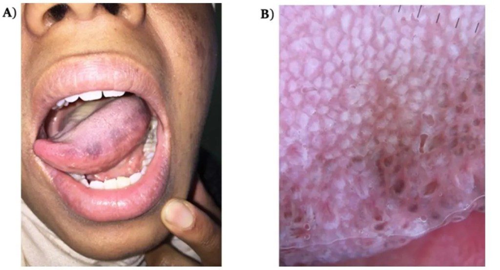 Pigmented Fungiform Papillae of the Tongue: Clinic and Dermoscopy