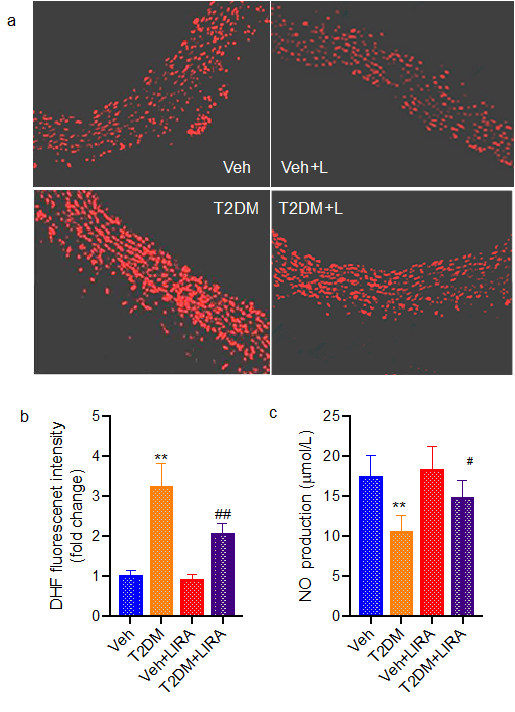 GLP-1 Agonists Liraglutide Improved Vascular Endothelial Function in Type 2 Diabetes Rats