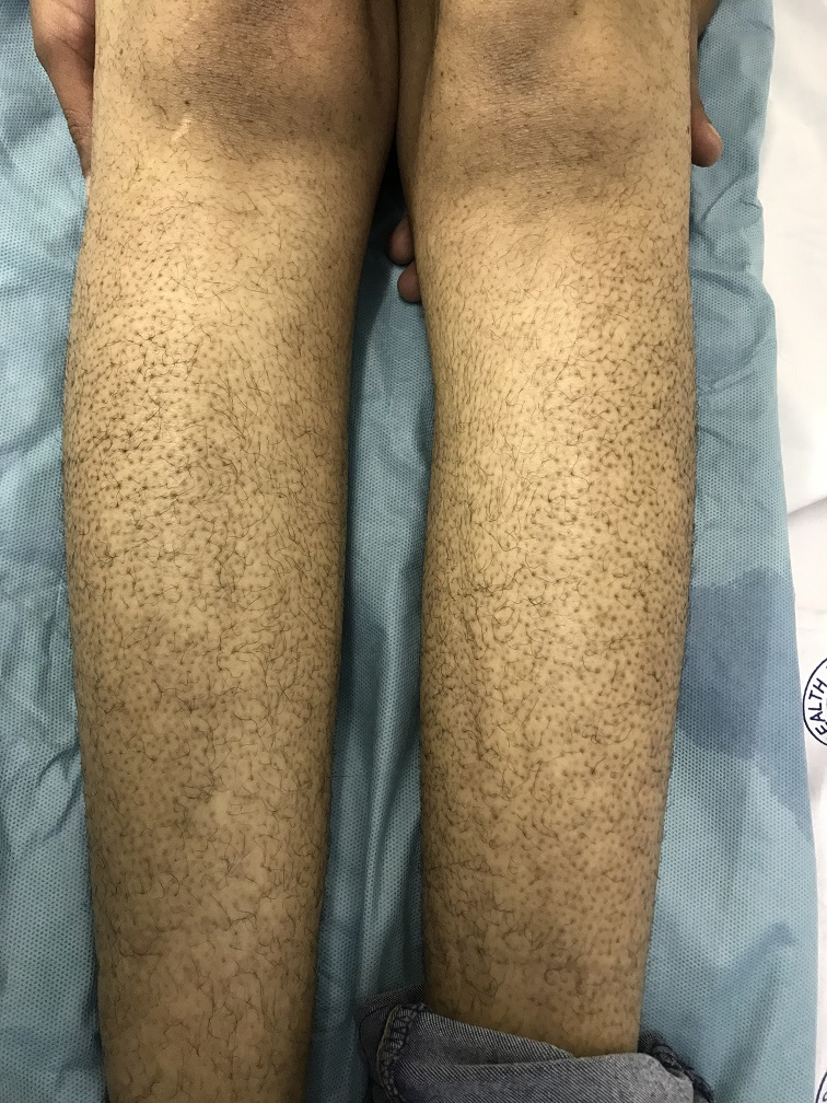 Imatinib-Induced Keratosis Pilaris in a Patient with Chronic Myeloid Leukemia