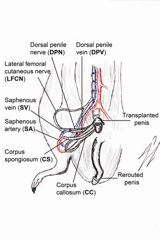 Long Term of Survival of Penile Allotransplantation Model