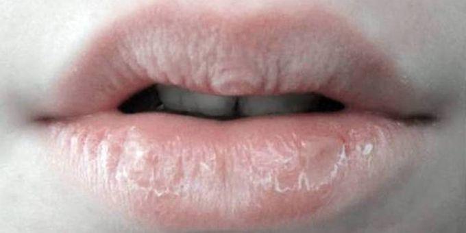 Bila bibir kering tersebut dibiarkan, maka kekeringan akan bertambah parah