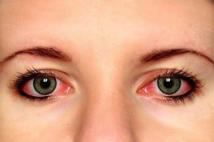 Image result for Mata Akan Terluka karena extension bulu mata