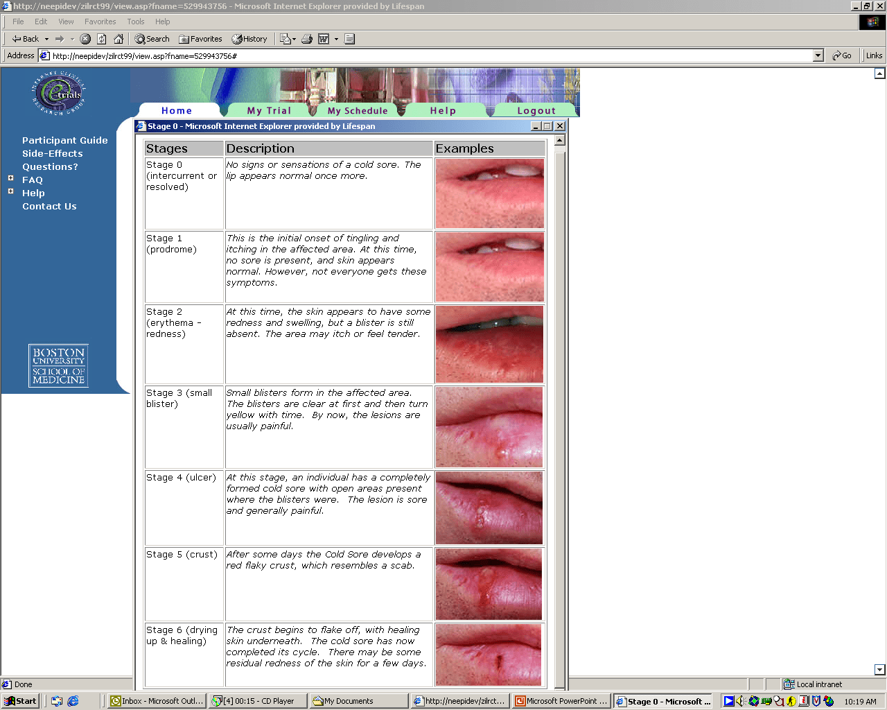 hight resolution of standard pictorial illustration of cold sore stages as part of the online outbreak questionnaire