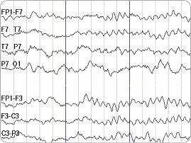 Electroencephalogram (EEG) for brain tumours