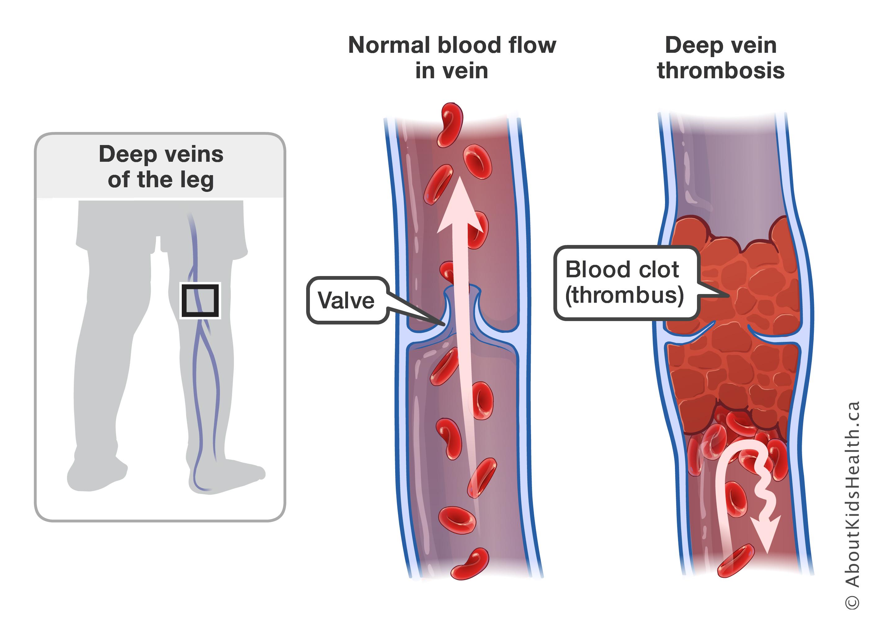 diagram of veins in wrist babies wiring diagram paper deep vein thrombosis diagram of veins in [ 2808 x 2000 Pixel ]