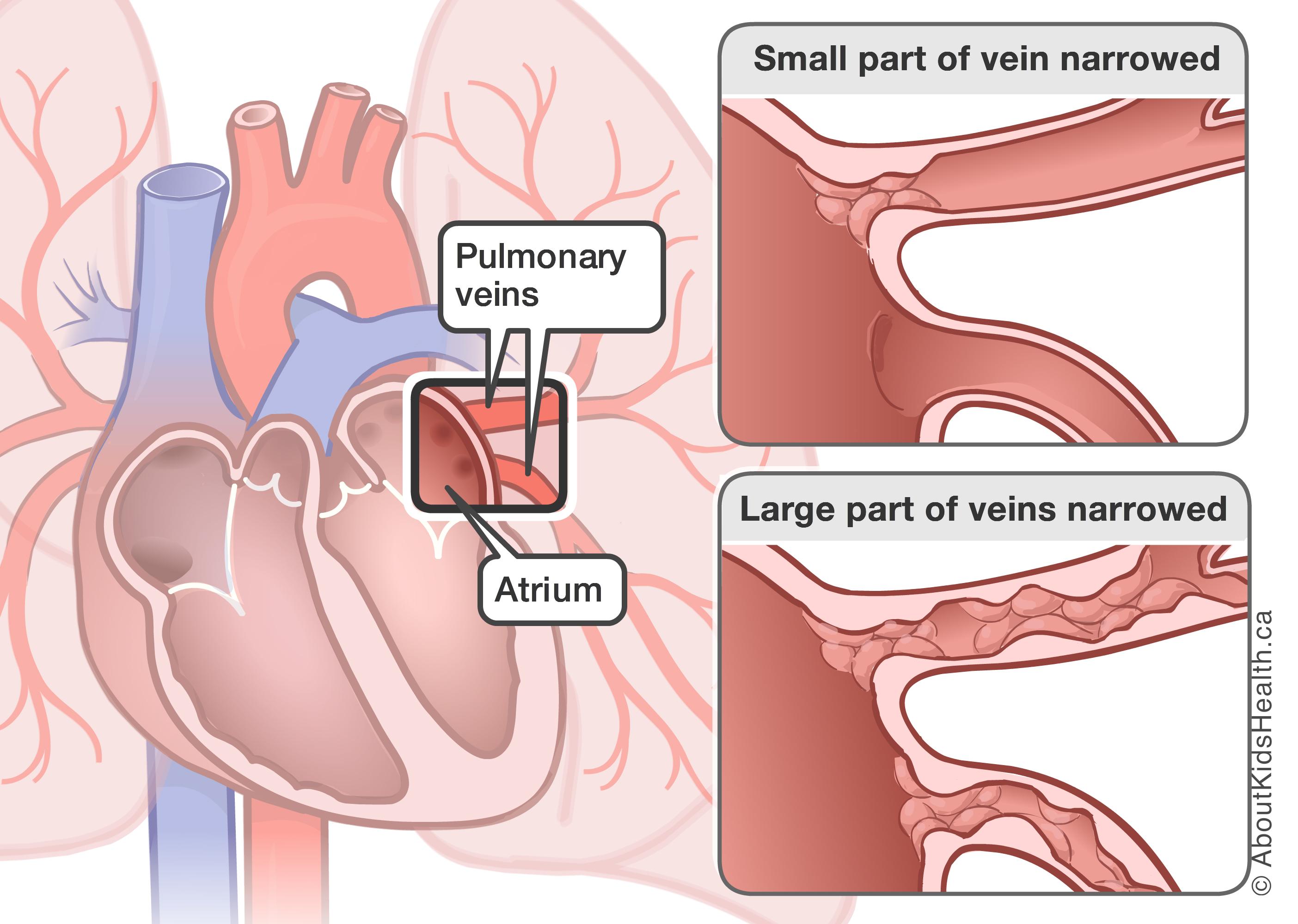 diagram of veins in wrist babies wiring diagram used diagram of veins in wrist babies [ 2808 x 2000 Pixel ]