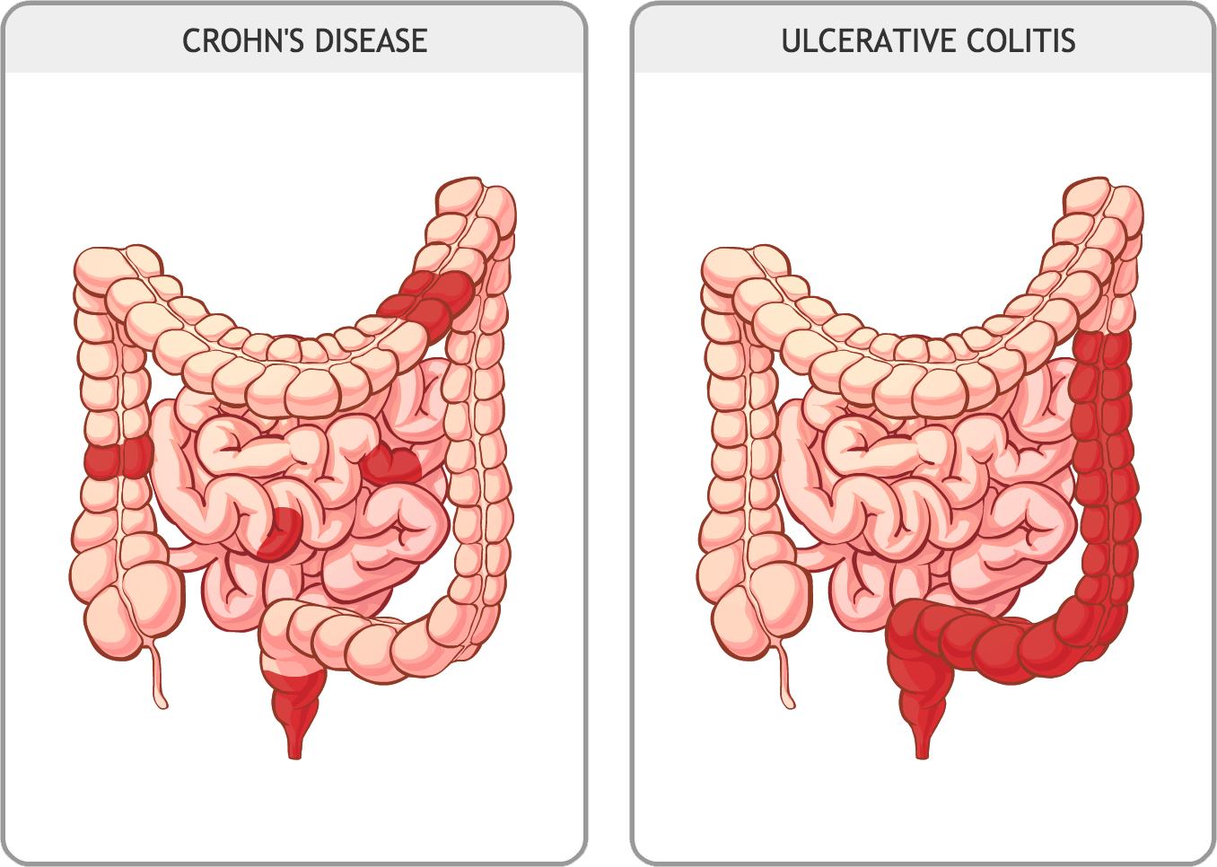 medium resolution of diagram of coliti