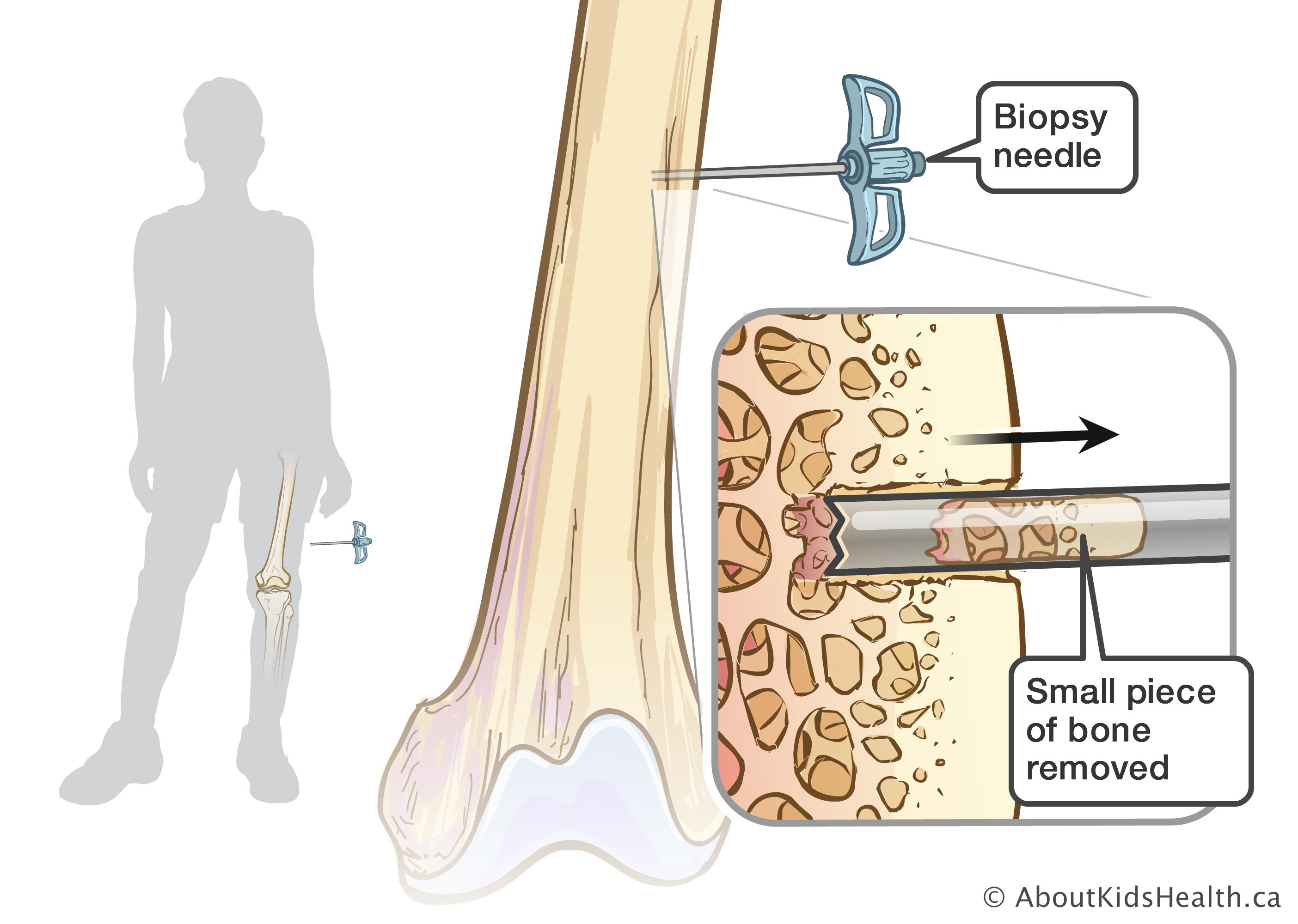 Bone biopsy using image guidance