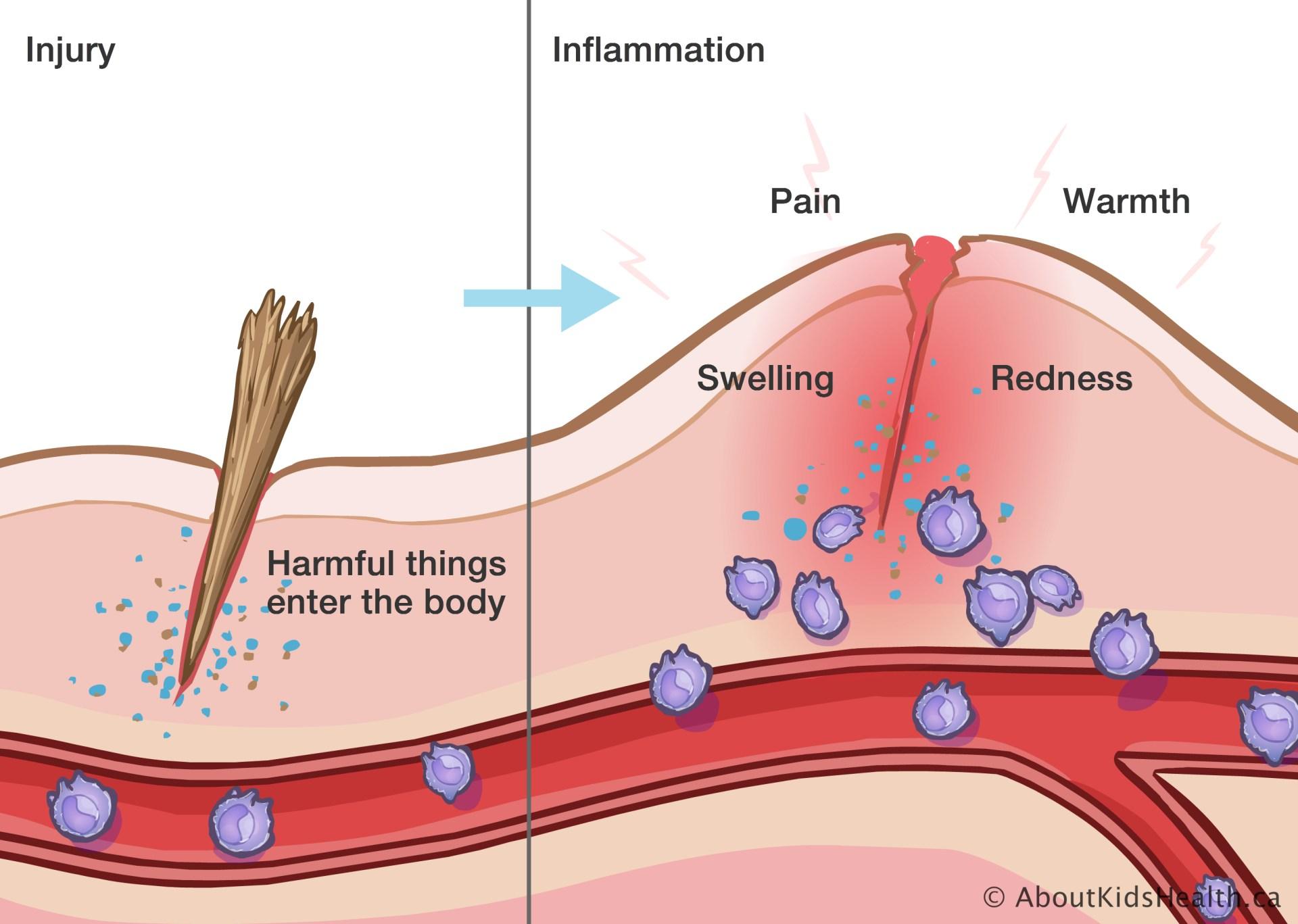 L'inflammation et le système immunitaire