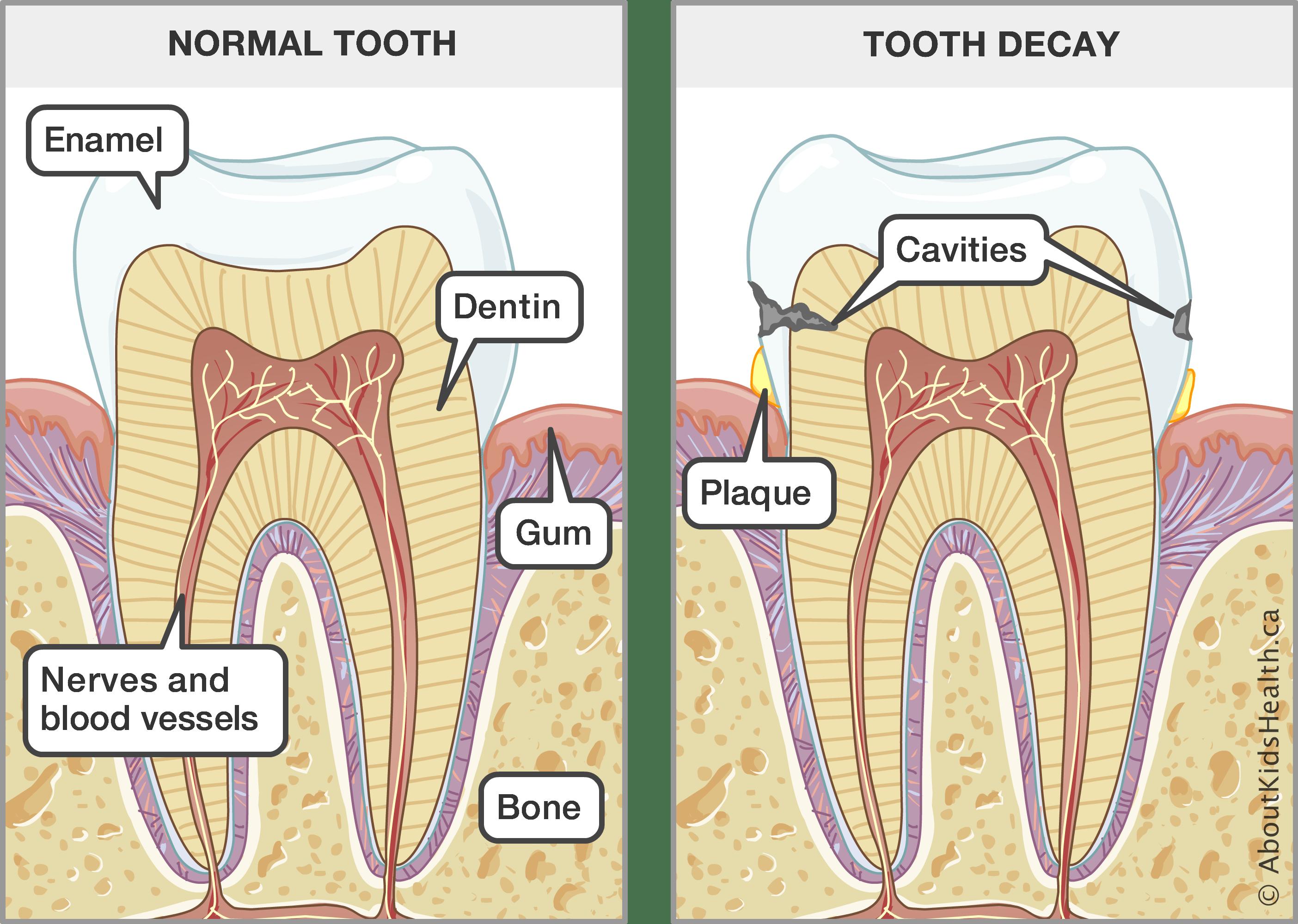 medium resolution of teeth dental care for children baby gums diagram