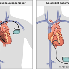 Heart Diagram Coronary Sinus 1 Ohm Speaker Wiring 3 Wire Pacemaker System Simple Options