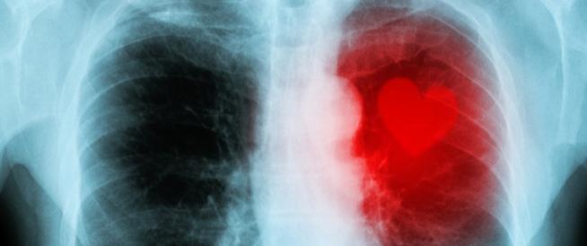 اعراض روماتيزم القلب