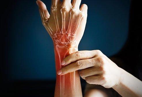 5 علامات وأعراض على نقص أوميغا 3 (1)