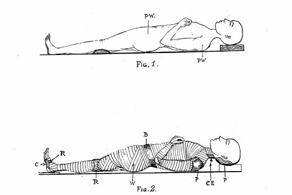 The Modest Victorian Proposal to Electroplate Corpses Into